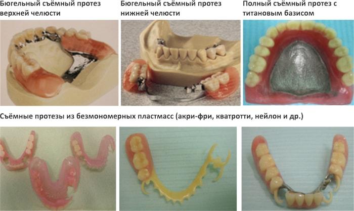 Ремонт съемных зубных протезов