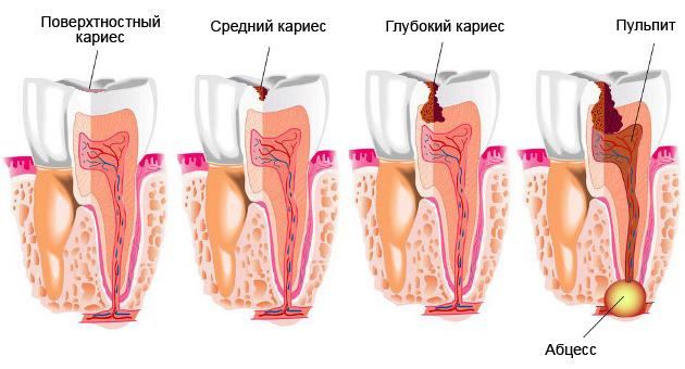 Лечение пульпита у взрослых этапы